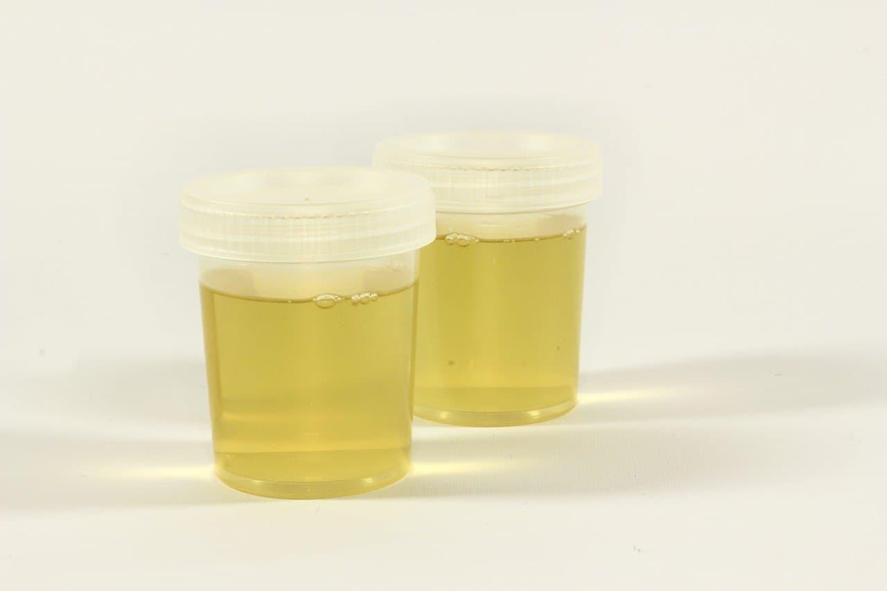 Urine fiole couleur